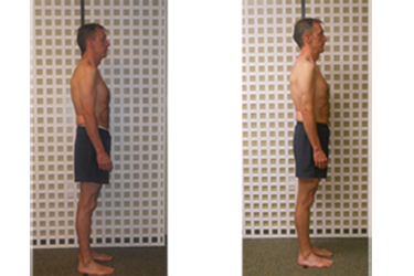 sdsi posture before and after
